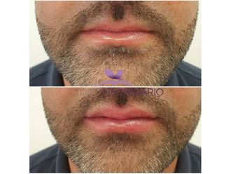 Aumento labios-699742