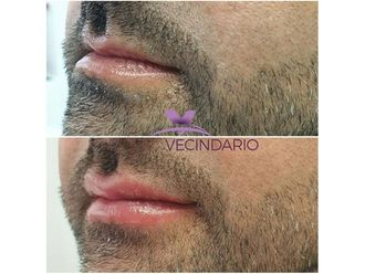 Aumento labios-699744