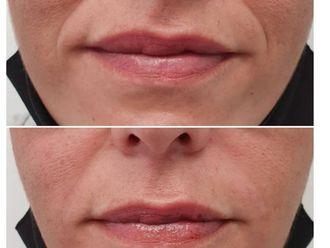 Rellenos faciales-789824