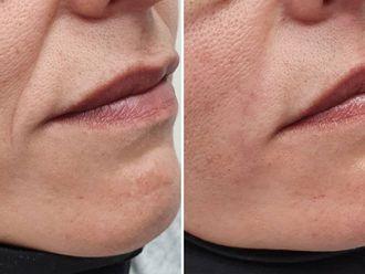 Rellenos faciales-789827