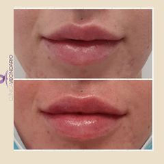 Aumento de labios - Clínica Vecindario