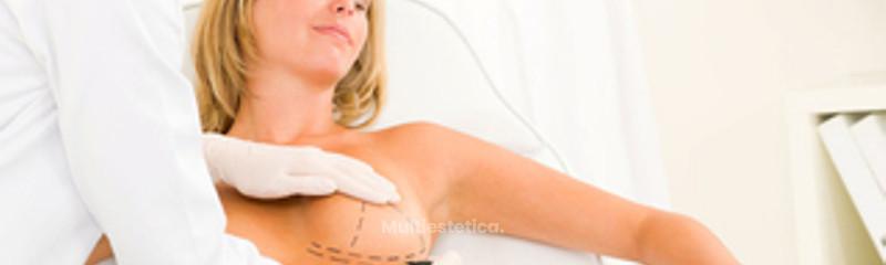 Cirugía Plástica Reconstructiva