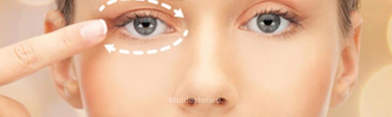 Cirugía de los párpados (Blefaroplastia)