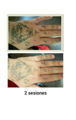 Eliminación de tatuajes - Ciao! Tattoo