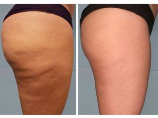 Antes y después Tratamientos anticelulíticos