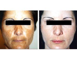 Antes y después Tratamientos faciales antimanchas