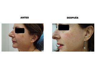 Antes y después peeling  (Eliminación de léntigo senil mediante)