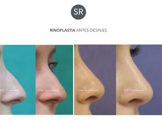 Rinoplastia-602745