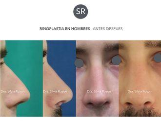 Rinoplastia-602749