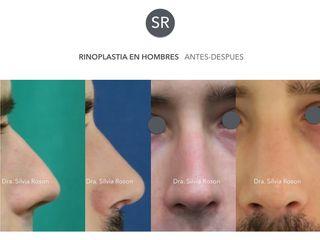 Antes y después Rinoplastia en hombres antes-despues Dra. Silvia Roson