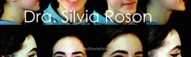 Cirugia Ortognatica antes-despues Dra. Silvia Roson
