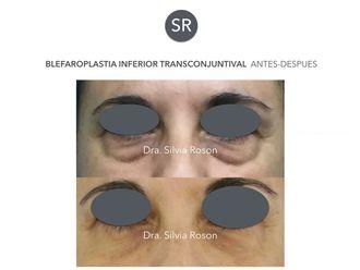 Blefaroplastia-602754