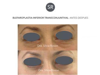 Blefaroplastia-602755