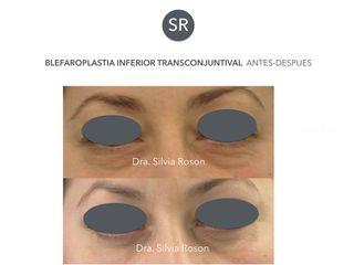 Blefaroplastia inferior transconjuntival antes-despues Dra. Silvia Roson