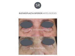 Antes y después Blefaroplastia inferior