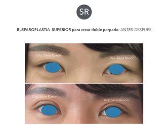 Blefaroplastia-602757