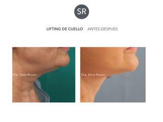 Antes y después Lifting de cuello