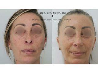 Antes y después Rinoplastia terciaria