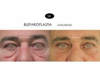 Blefaroplastia para festones y parpado caido, antes-despues. Dra. Silvia Roson
