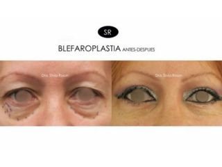 AnteBlefaroplastia inferior. Blefaroplastia superior. Blefaroplastia completa.