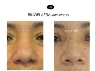 Rinoplastia-627441