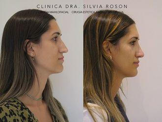 Rinoplastia - 799790