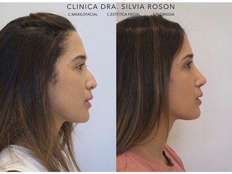 Rinoplastia - 799791