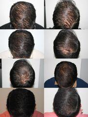 Antes y después Plasma rico contra la alopecia, debilidad capilar, baja densidad capilar, etc.