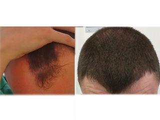 Antes y después Injerto capilar