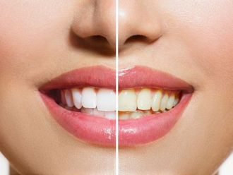 Blanqueamiento dental - 624931