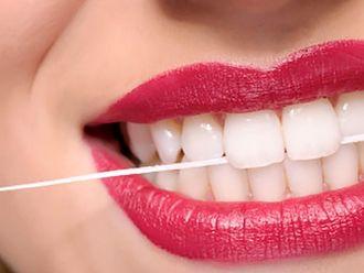 Carillas dentales - 624932