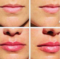 Aumento de labios - Centro Venus