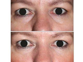 Antes y después Corrección de ojeras