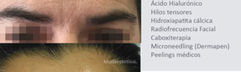 rejuvenecimiento facial 2.jpg