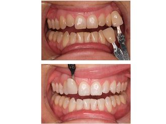 Blanqueamiento dental-488800