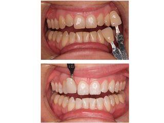 Antes y después Blanqueamiento dental