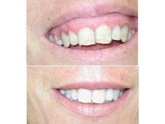 Odontología-500734
