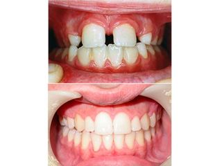 Antes y después Frenectomis y ortodoncia