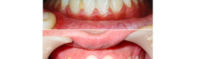Frenectomis y ortodoncia