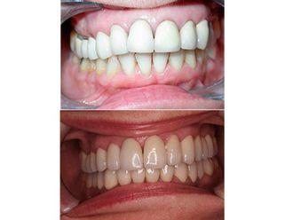 Ortodoncia-500736