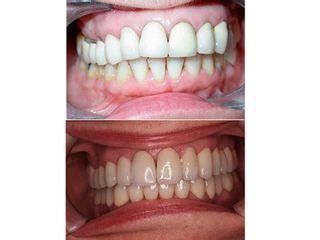 Antes y después Rehabilitación de fundas de circonio
