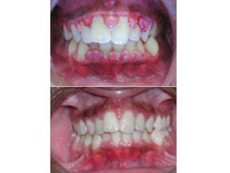 Odontología-500737