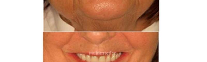 Diseño de la sonrisa, implantología