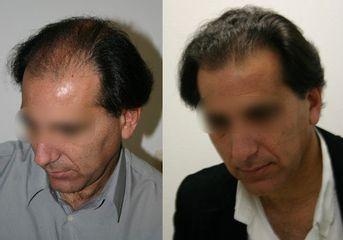 Antes y después Microinjerto