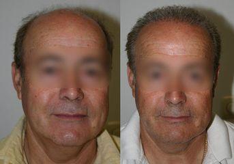 Antes y después Microinjertos de pelo