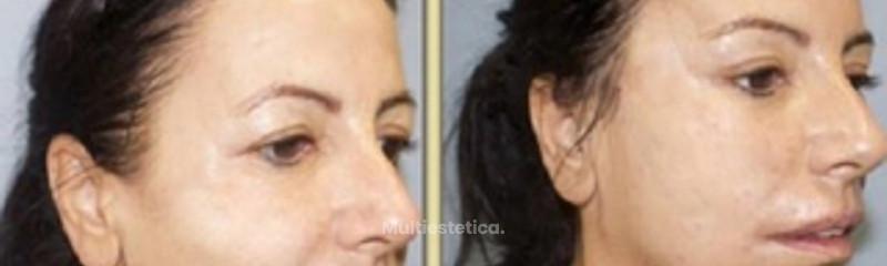 Antes y despues de lifting sin cicatriz