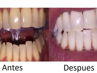 Blanqueamiento dental - 596393