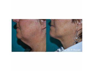 Liposucción-647784