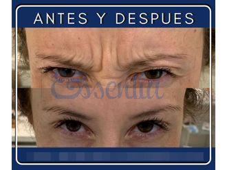 Medicina estética-647796