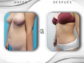 Abdominoplastia - 739477